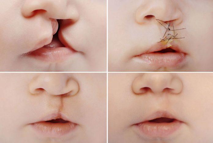 Labbro Leporino: che cos'è, cause, sintomi, diagnosi e possibili cure