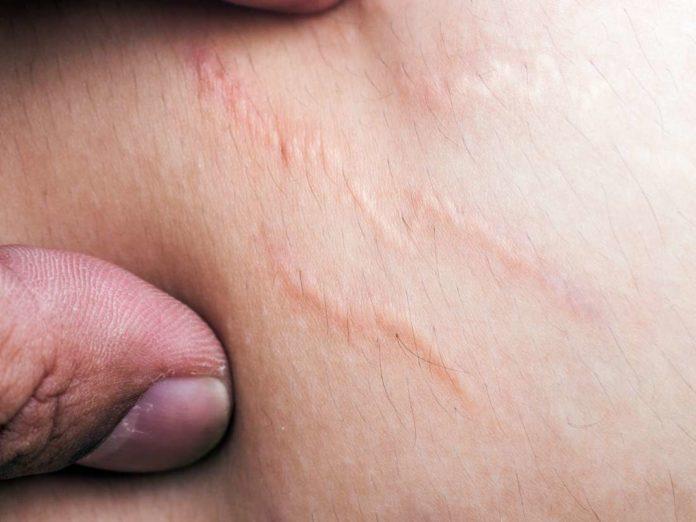 Smagliature Rosse: cosa sono, cause, sintomi, diagnosi e possibili cure