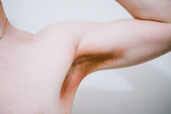 Eritrasma: che cos'è, cause, sintomi, diagnosi e possibili cure