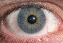 Iridociclite: che cos'è, cause, sintomi, diagnosi e possibili cure