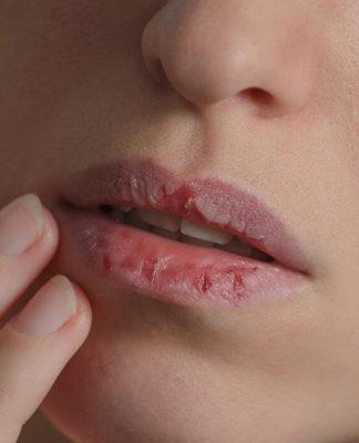 Labbra Screpolate: cosa sono, cause, sintomi e possibili cure
