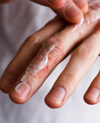 Ragadi alle dita delle mani: cosa sono, sintomi, cause e possibili cure