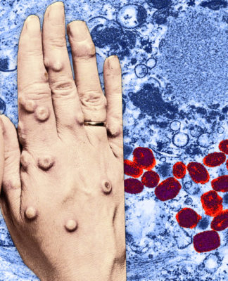Vaiolo: che cos'è, sintomi, cause, contagio, diagnosi e possibili cure