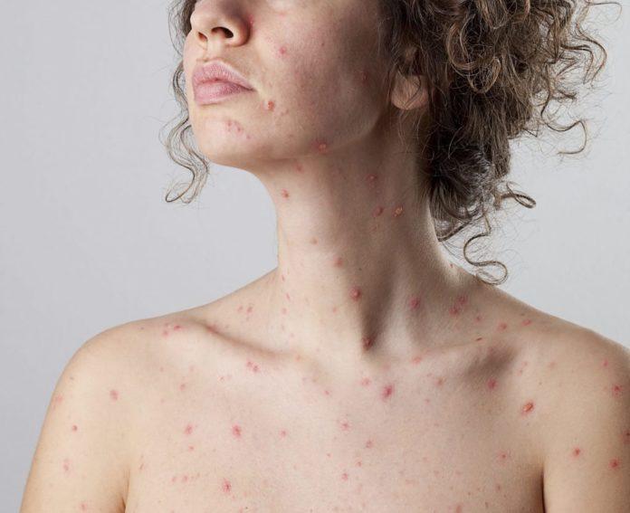 Varicella: che cos'è, sintomi, cause, diagnosi e possibili cure