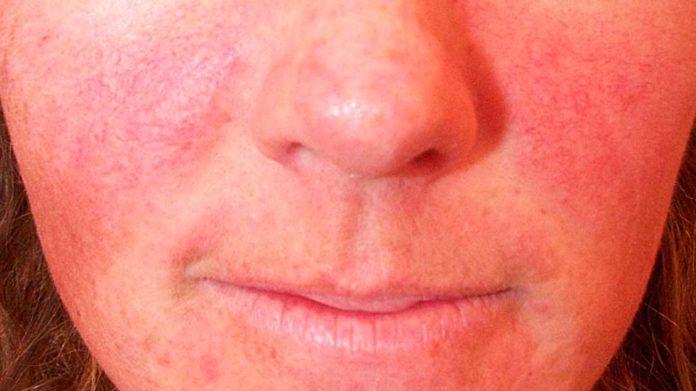 Pelle Arrossata: che cos'è, sintomi, cause, diagnosi e possibili cure
