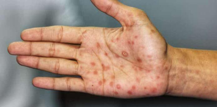Sifilide nell'uomo: che cos'è, sintomi, contagio, diagnosi e possibili cure