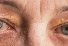 Sindrome di Sjögren: che cos'è, sintomi, cause, diagnosi e possibili cure