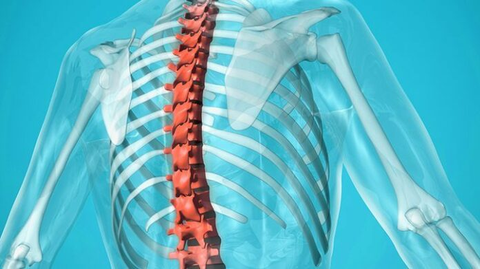 Spondiloartrosi: che cos'è, cause, sintomi, diagnosi e possibili cure