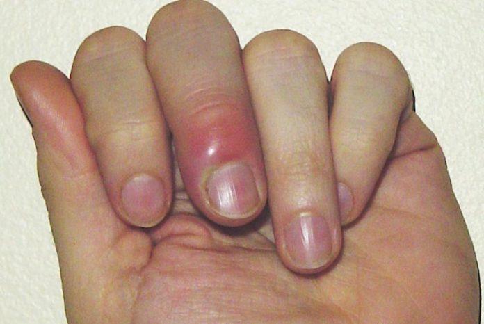 Paronichia: che cos'è, sintomi, cause, diagnosi e possibili cure