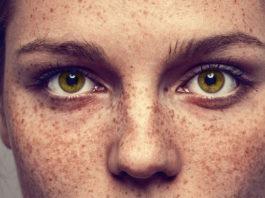 Efelidi: cosa sono, cause, sintomi e possibili cure