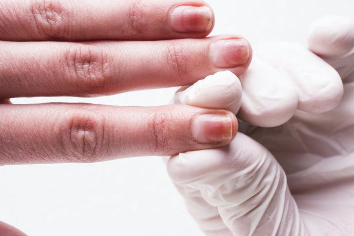 Onicolisi (Distacco dell'Unghia): che cos'è, cause, sintomi e possibili cure