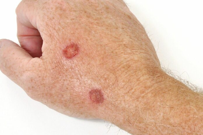 Cheratosi Follicolare: che cos'è, cause, sintomi, diagnosi e possibili cure