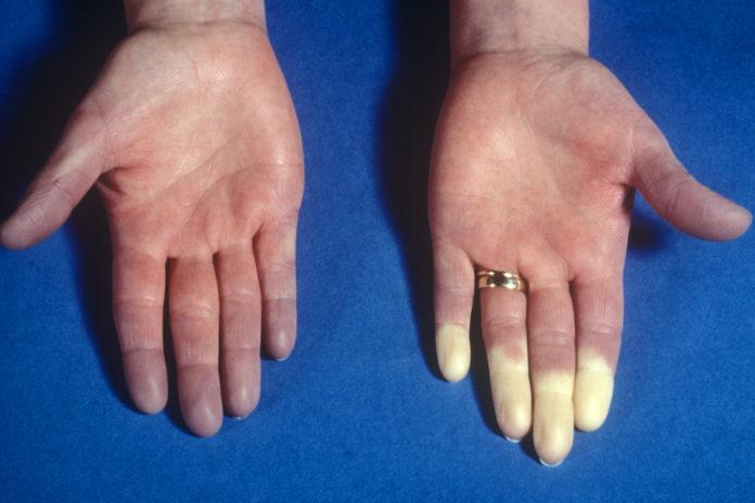 Fenomeno di Raynaud: che cos'è, cause, sintomi, diagnosi e possibili cure
