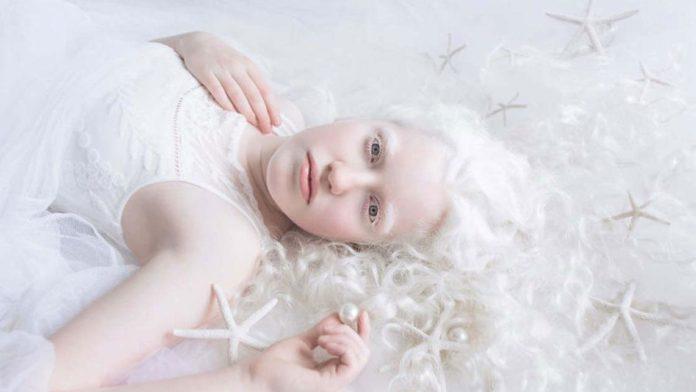 L'Albinismo: che cos'è, cause, diagnosi e tipologie
