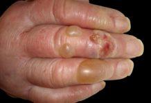 Pemfigoide bolloso: che cos'è, cause, sintomi, diagnosi e possibili cure