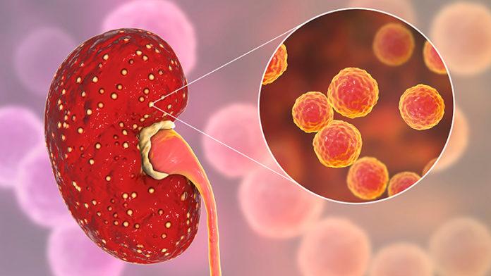 Pielonefrite: che cos'è, cause, sintomi, diagnosi e possibili cure