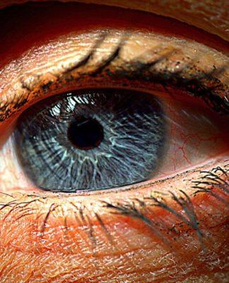 Distacco di retina: che cos'è, cause, sintomi, diagnosi e possibili cure