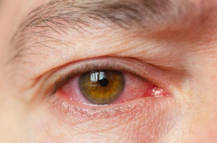 Uveite dell'occhio: che cos'è, cause, sintomi, diagnosi e possibili cure