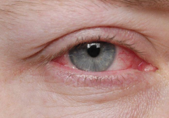 Cheratite dell'occhio: che cos'è, cause, sintomi, diagnosi e possibili cure