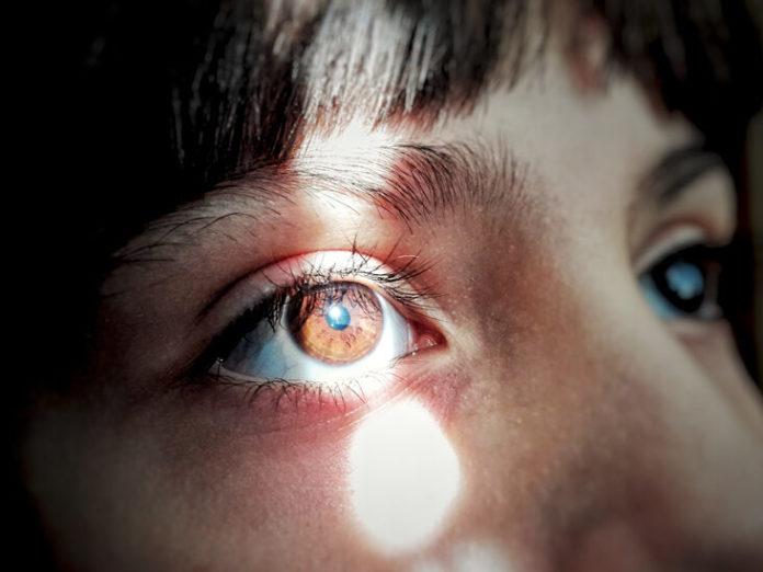 Fotofobia: che cos'è, cause, sintomi e possibili cure
