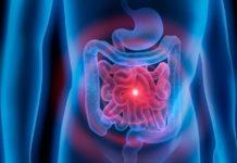 Dolicocolon: che cos'è, cause, sintomi, diagnosi e possibili cure