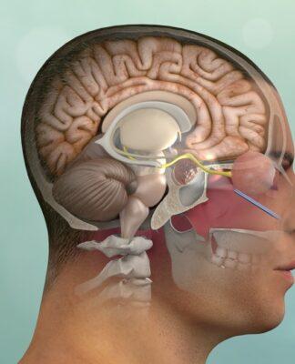 Adenoma Ipofisario: che cos'è, cause, sintomi, diagnosi e possibili cure