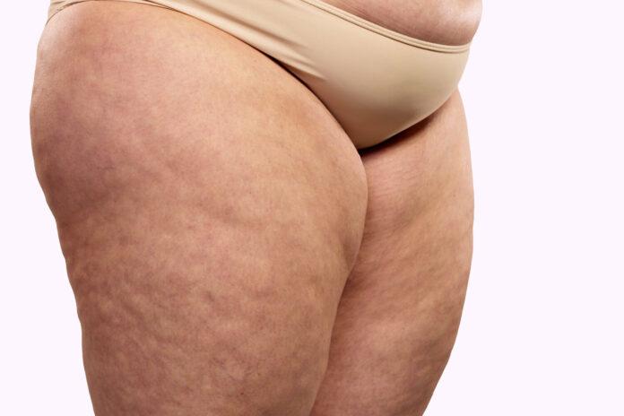 Cellulite Edematosa: che cos'è, cause, sintomi, diagnosi e possibili cure